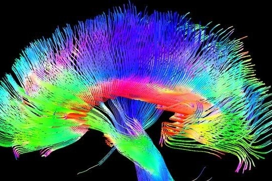 Science Reveals Artists Really Do Have Different Brains